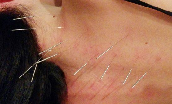 首、肩、背中の針治療の終了 / KAHALA